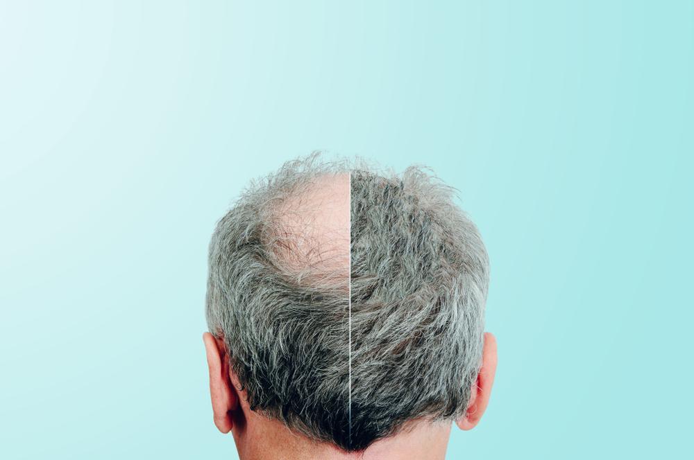 3 productos que bloquean el DHT para acelerar el crecimiento del cabello