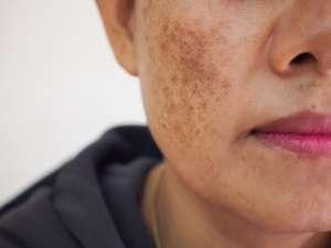 3 productos que ayudan a desvanecer las manchas en la cara por el sol