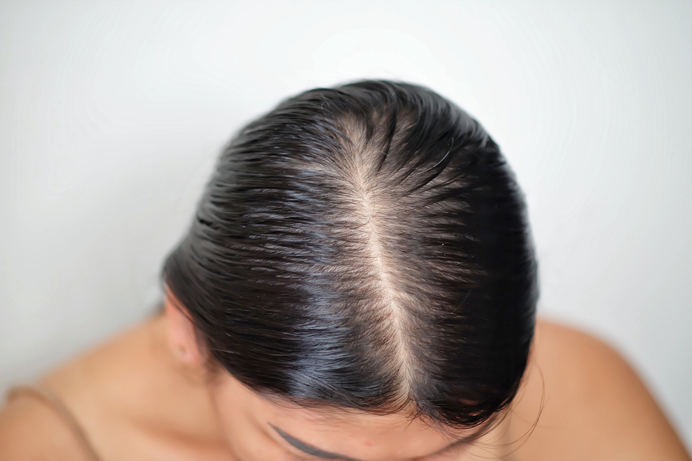 3 productos que ayudan a controlar la grasa en el cuero cabelludo