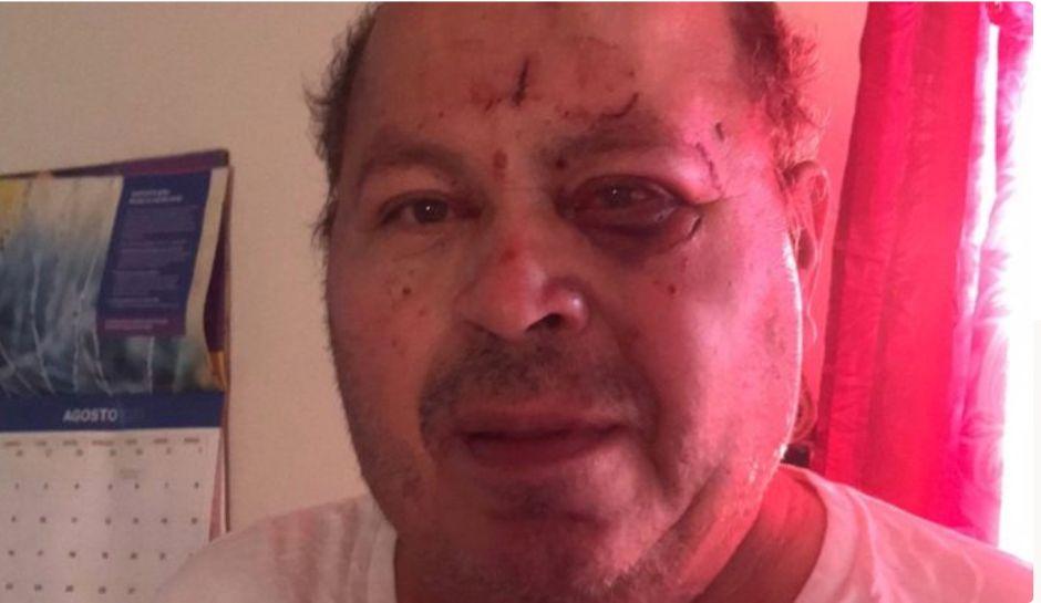 Después de golpear y robar a este señor hispano, el ladrón volvió y lo amenazó en su casa