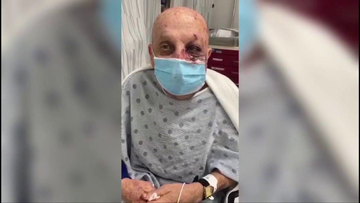 Eduardo Fernández, un anciano de 74 años, fue trasladado al hospital tras recibir una golpiza en el Metromover de Miami.