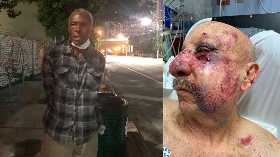 Arrestan al hombre que supuestamente golpeó al anciano en el metro de Miami