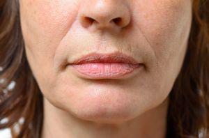 Productos antiarrugas: Los mejores para combatir las que salen alrededor de la boca