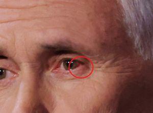 La razón por la que Mike Pence tiene sangre en el ojo izquierdo
