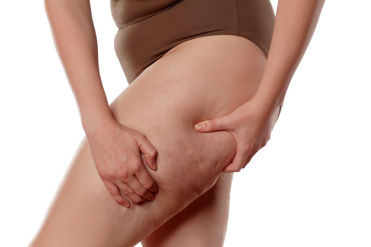 Los geles corporales que ayudan a disminuir la celulitis