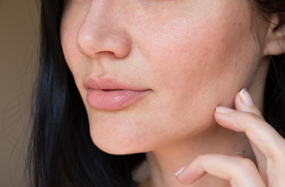 Estas son las cápsulas de ácido hialurónico que suavizan las arrugas y mejoran la textura de la piel