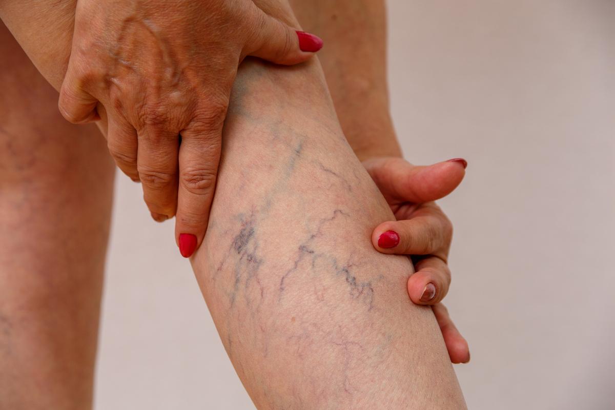 Los 5 mejores productos para eliminar las varices de tus piernas