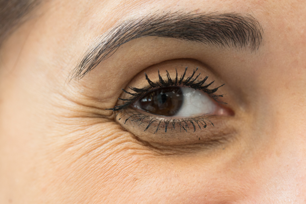 Estos productos de vitamina K mejoran el aspecto de las ojeras oscuras y arrugas