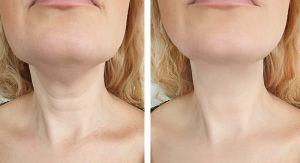 ¿Arrugas en cuello y frente? 3 razones para usar resveratrol uno de los antioxidantes más potentes