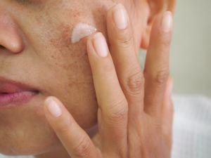 ¿Harta por manchas o problemas de melasma? El ácido tranexámico remueve manchas profundas y mejora la textura de la piel