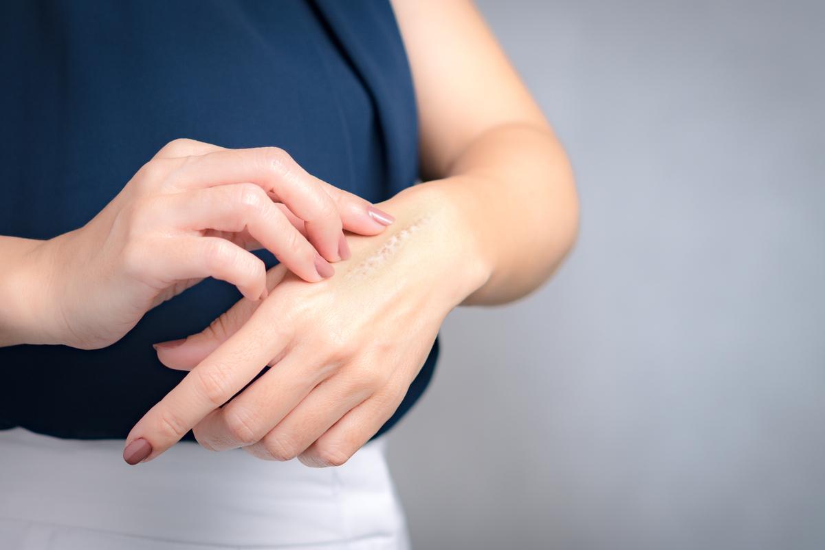 Las 5 mejores cremas para eliminar las cicatrices de tu piel