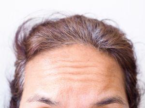 3 ingredientes que pueden rellenar las arrugas en la frente y hacerte ver más joven