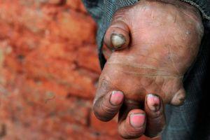 En qué países sigue habiendo lepra (y por qué no se ha logrado erradicar)