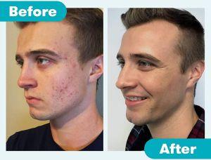 ¿Qué es el acné y cuáles son los mejores ingredientes para combatirlo?
