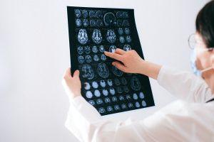 """6 formas de """"reiniciar tu cerebro"""" tras un año difícil de pandemia COVID-19"""