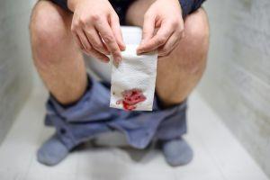 ¿Sufres de hemorroides? Calma el dolor y las molestias con estos 3 tratamientos