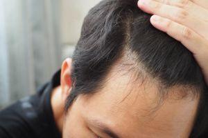 ¿Cómo hacer crecer pelo en la parte superior de la frente y entradas? 3 aceites naturales que se encargan de mejorar el crecimiento