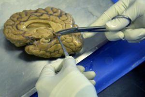 El cerebro de Phillip Adams, quien mató a cinco personas en Carolina del Sur, será analizado