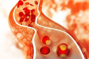 ¿Cómo controlar y mejorar el colesterol alto?