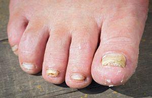 ¿Cómo quitar el hongo de las uñas de los pies?
