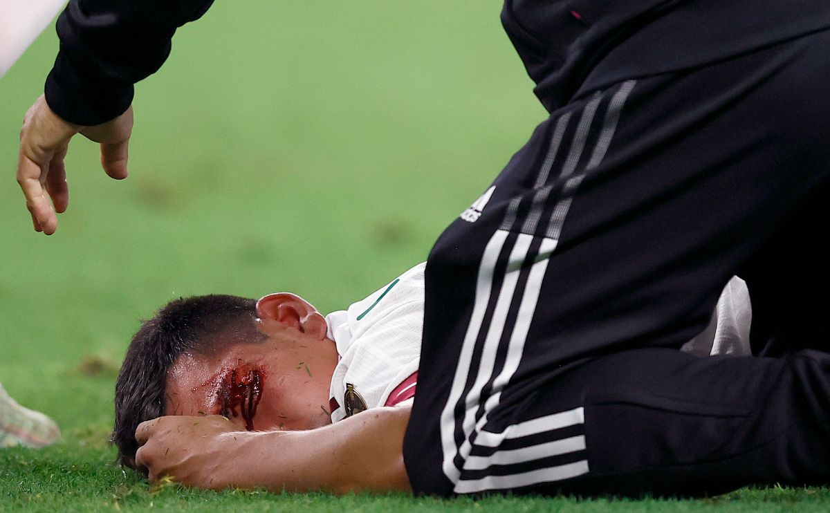 El futbolista del Napoli será sometido a otros estudios para determinar si sufrió algún problema neurológico.
