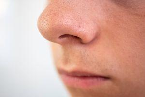Productos que ayudan a minimizar los poros dilatados en la nariz, mejillas y frente