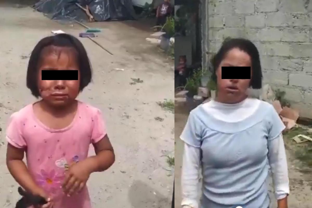 VIDEO: Abuelita quema el rostro de su nieta con cuchillo caliente