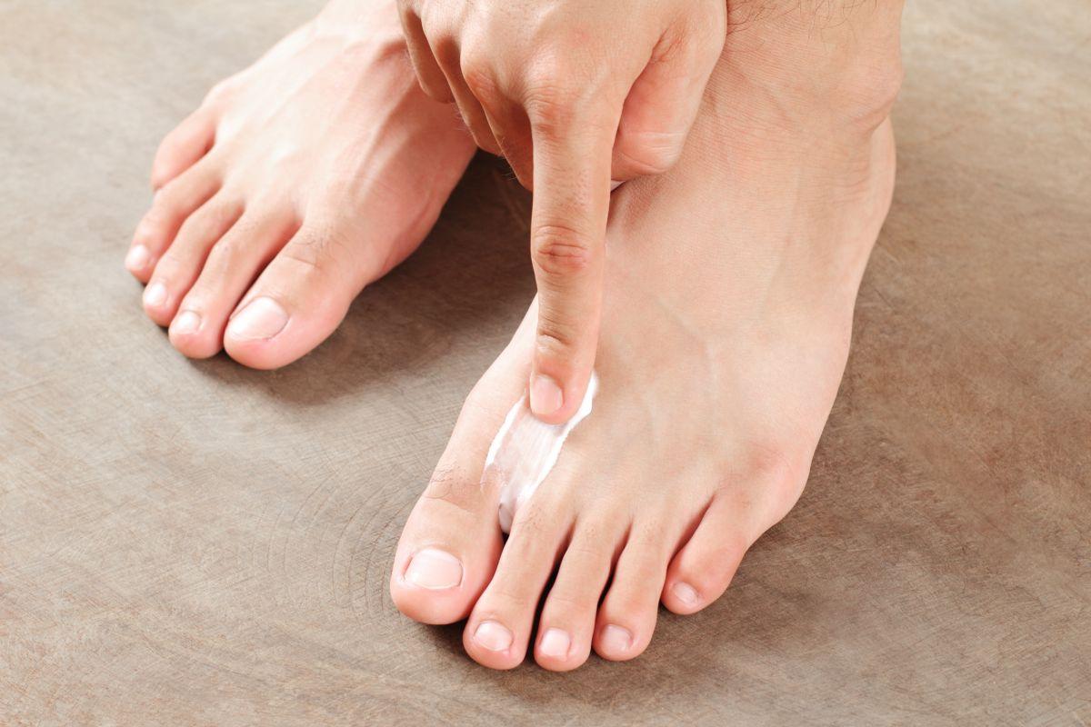 Para combatir las molestias del pie de atleta, dale un vistazo a estos productos