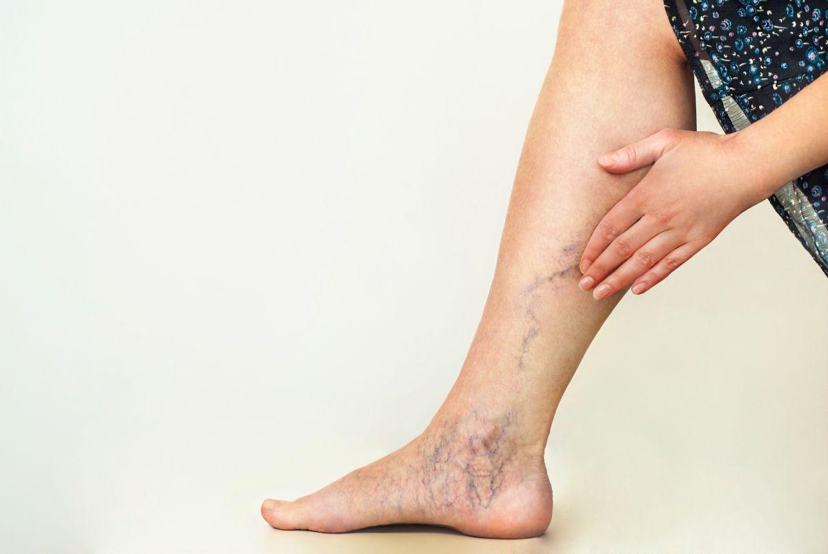 Las varices son un padecimiento antiestético y también contraproducente para la salud